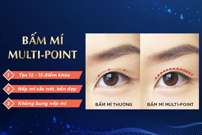 """Bác Sĩ Bấm Mí Multiple Point """"Hô Biến"""" 1 Mí Thành Mắt 2 Mí"""