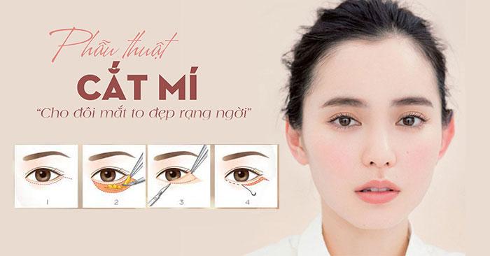 """Bác Sĩ Cắt Mí Mắt Perfect """"Hô Biến"""" Mắt 1 Mí Thành 2 Mí Đẹp"""