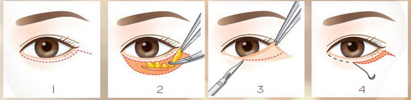Bác Sĩ Lấy Mỡ Mắt Nội Soi Loại Bỏ Mỡ Mắt Lấy Lại Thanh Xuân