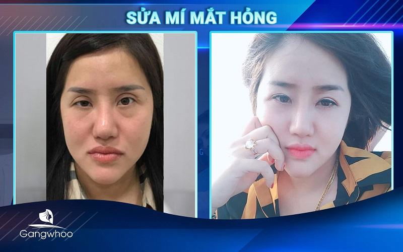 khách hàng sau khi sửa mí mắt hỏng tại TMV Gangwhoo