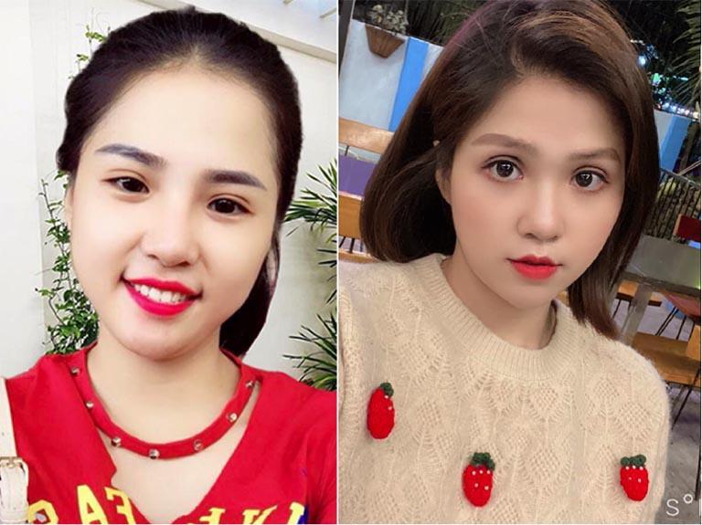 Cắt Mí Đẹp Tại Khánh Hòa