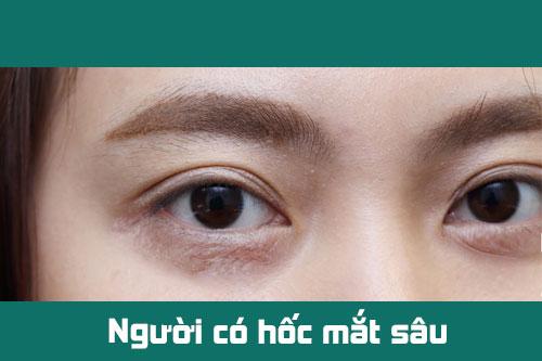 Hốc Mắt Sâu