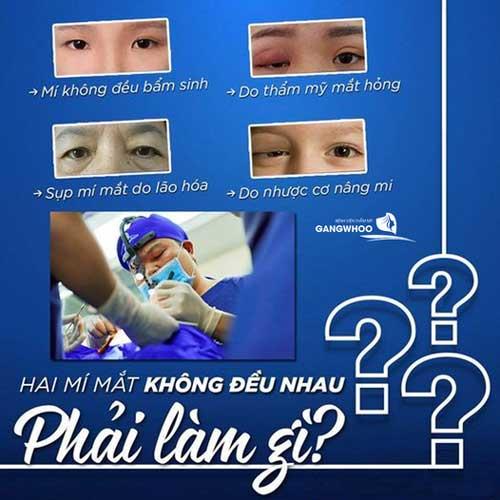 Sửa Mí Mắt Hỏng